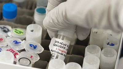 """14 horas - Los expertos consideran normal lo ocurrido con la vacuna de Oxford: """"Forma parte del método científico"""" - Escuchar ahora"""