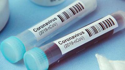 14 horas fin de semana - Un ensayo clínico de investigación compartida en Andalucía para vencer al coronavirus - Escuchar ahora