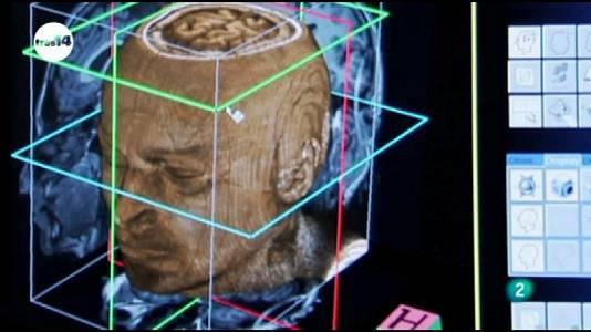 Neurolenguaje