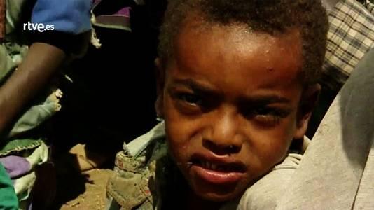 Etiopía, todas las caras del hambre