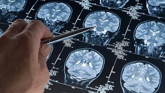Se estudiará la enfermedad de Alzheimer en la ingravidez del