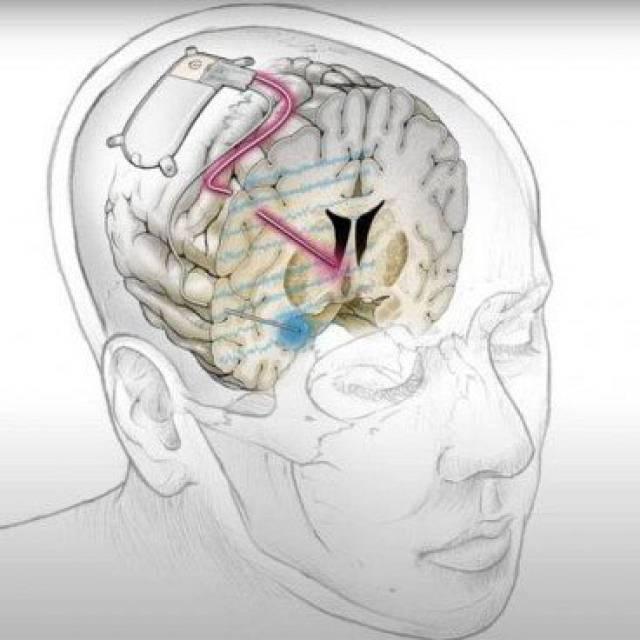 Un implante cerebral histórico trata con éxito la depresión