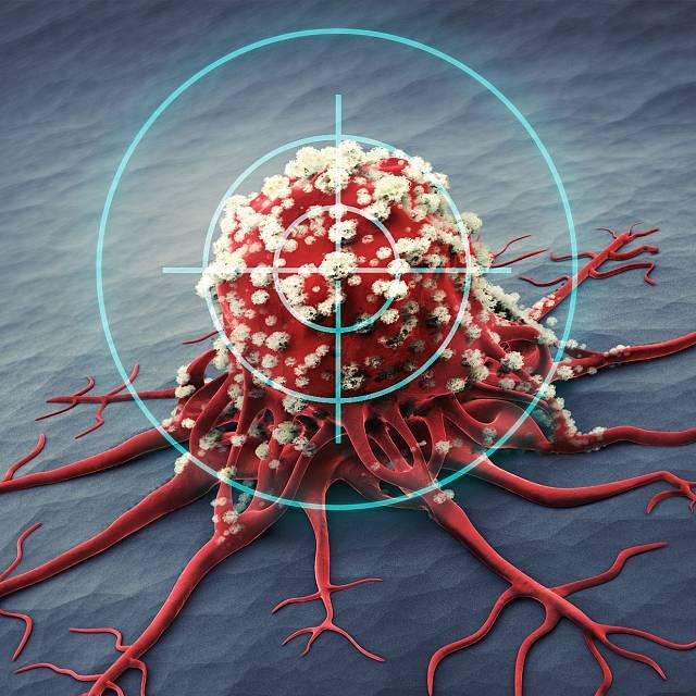 La importancia de la investigación oncológica