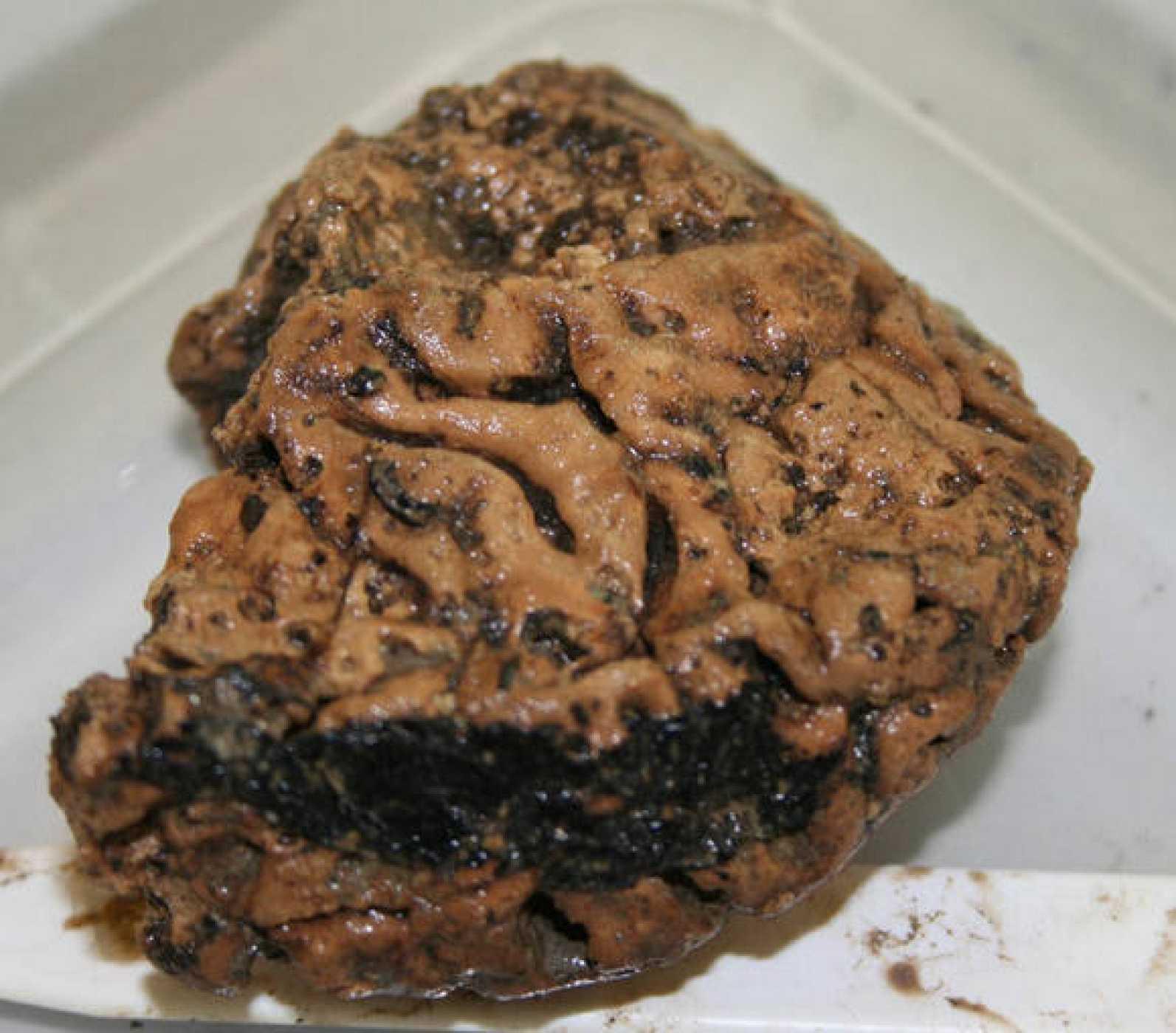 El cerebro se ha conservado en perfectas condiciones durante casi 2.700 años