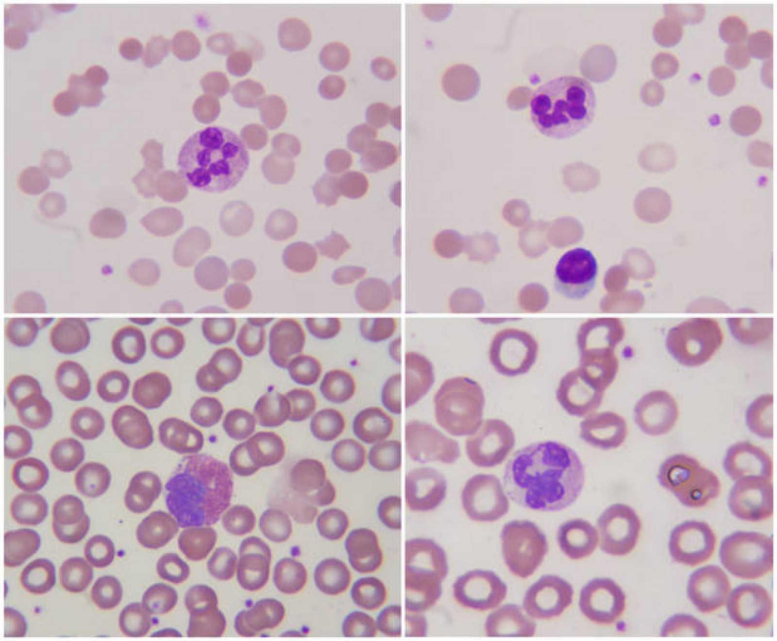 Sangre vista al microspcopio.