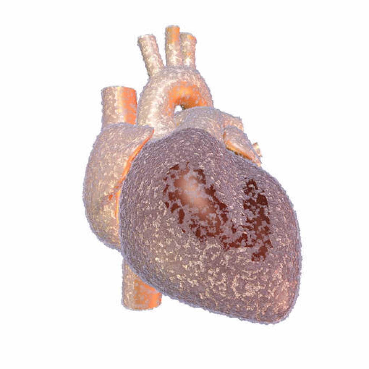Ilustración de un corazón helado.