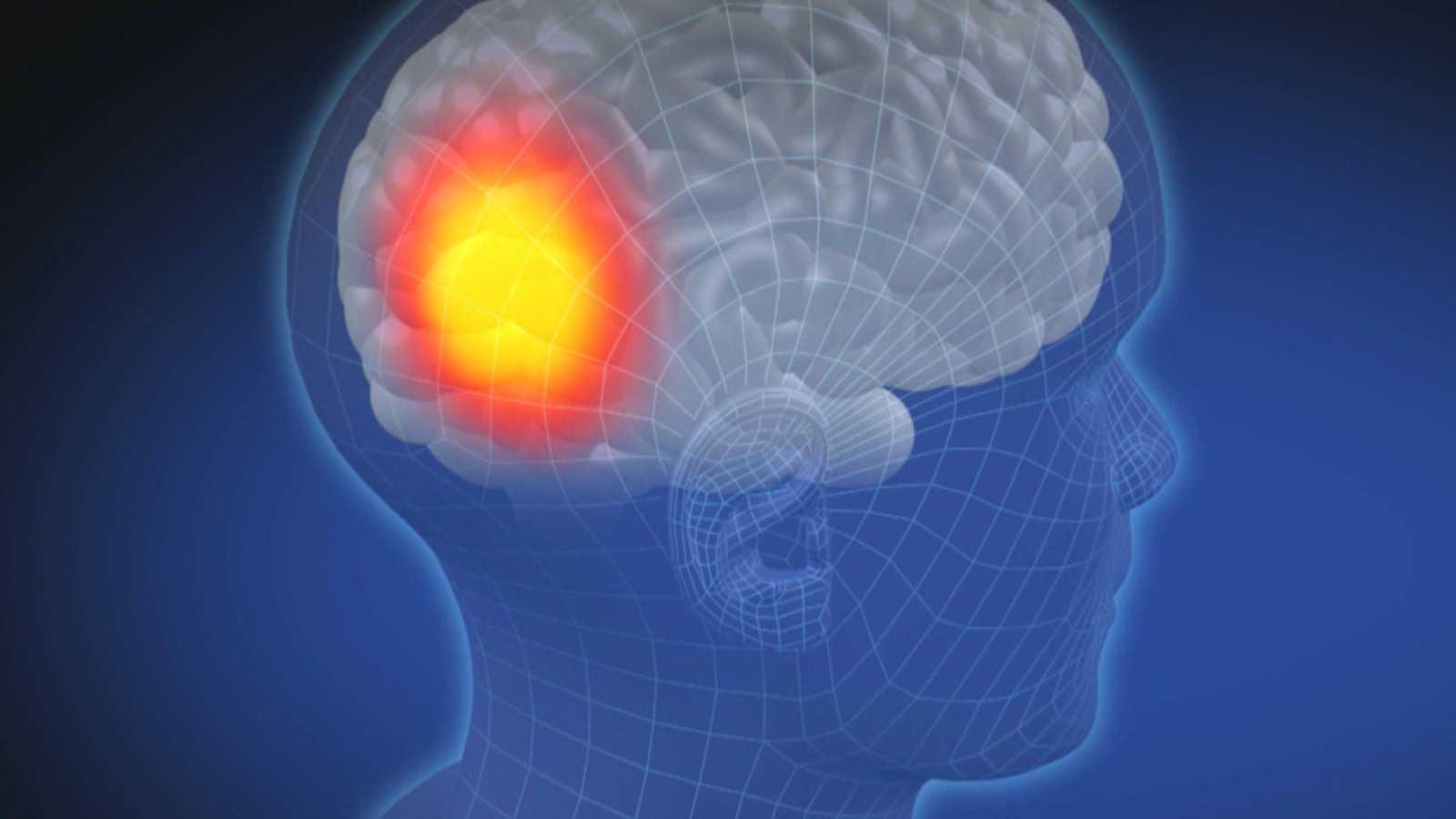 Dolor de cabeza frontal niebla cerebral