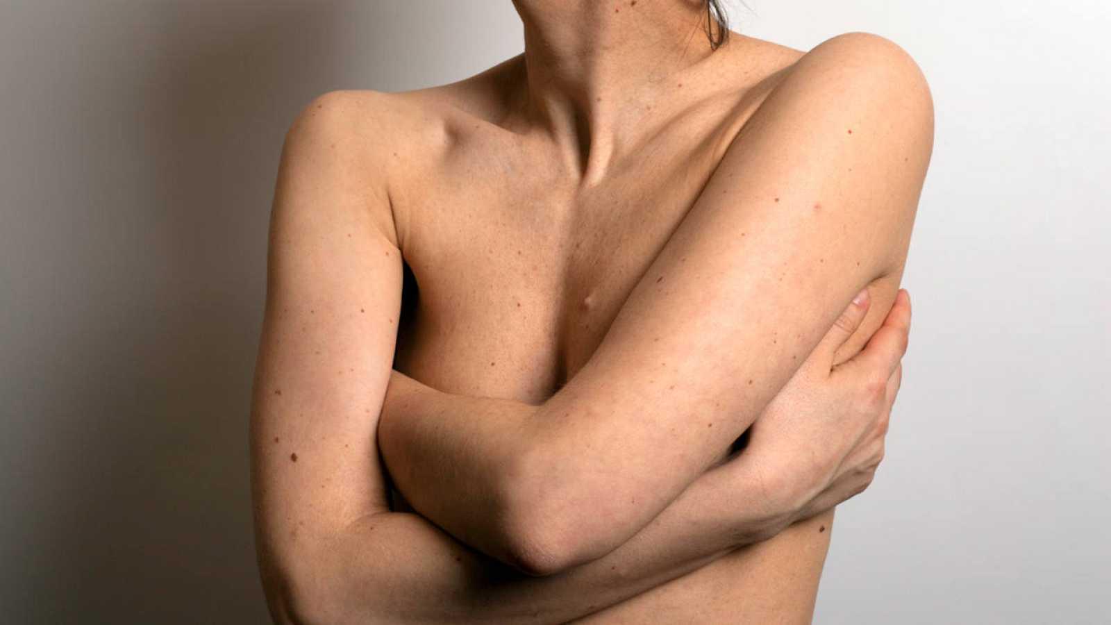 Una de cada ocho mujeres sufrirá cáncer de mama a lo largo de su vida.