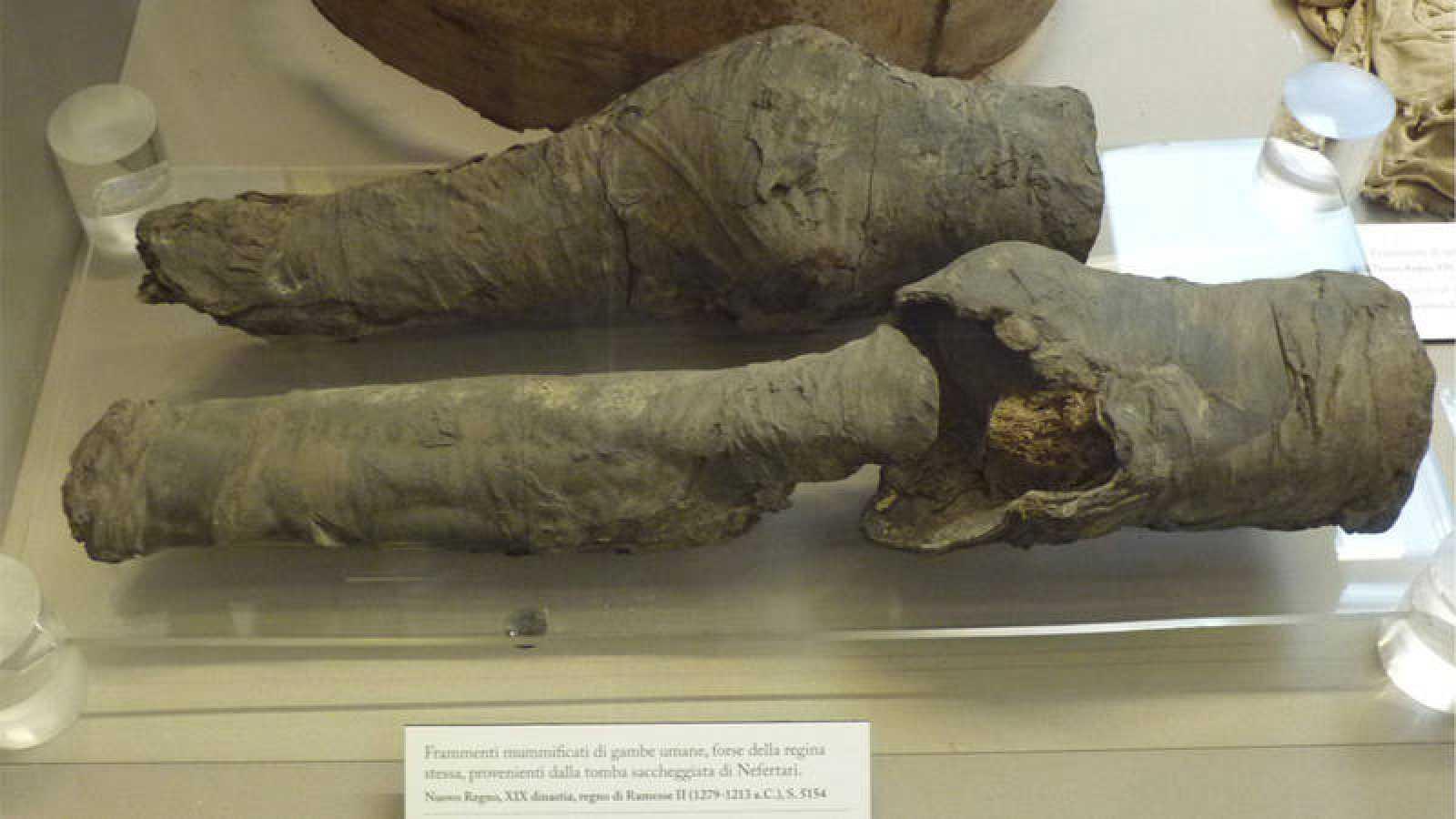 Las piernas embalsamadas han sido sometidas a exámenes químicos y paleopatológicos, además de datación por radiocarbono.