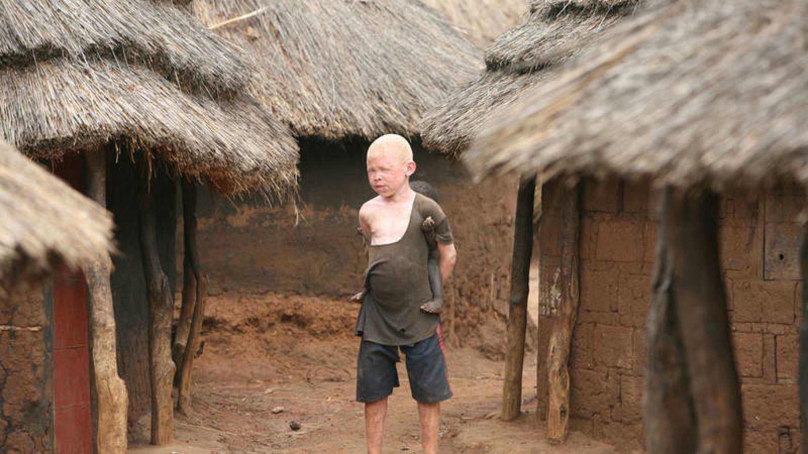 'Memoria de delfín' con el albinismo