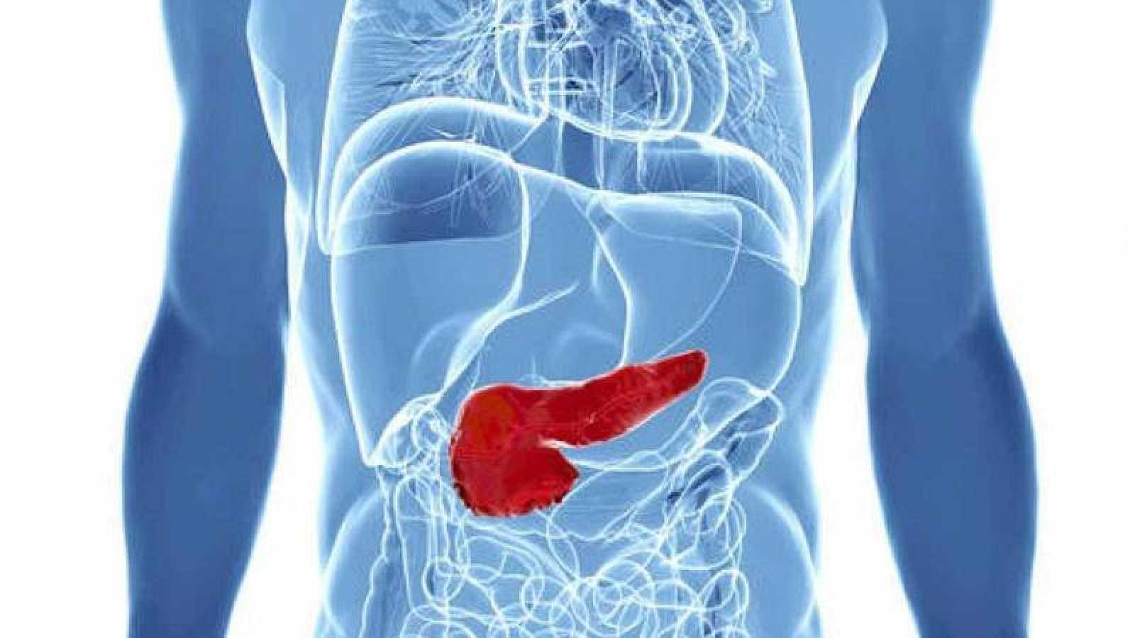 El cáncer de páncreas es el tercero que más muertes produce en España.