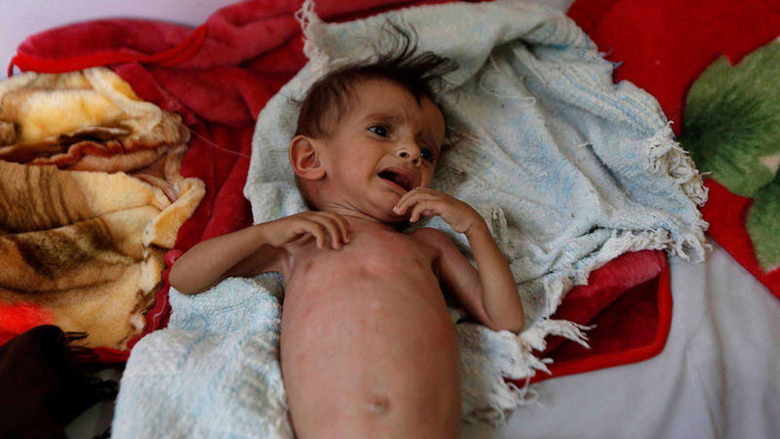Un niño en un centro de tratamiento de la malnutrición en Saná, Yemen