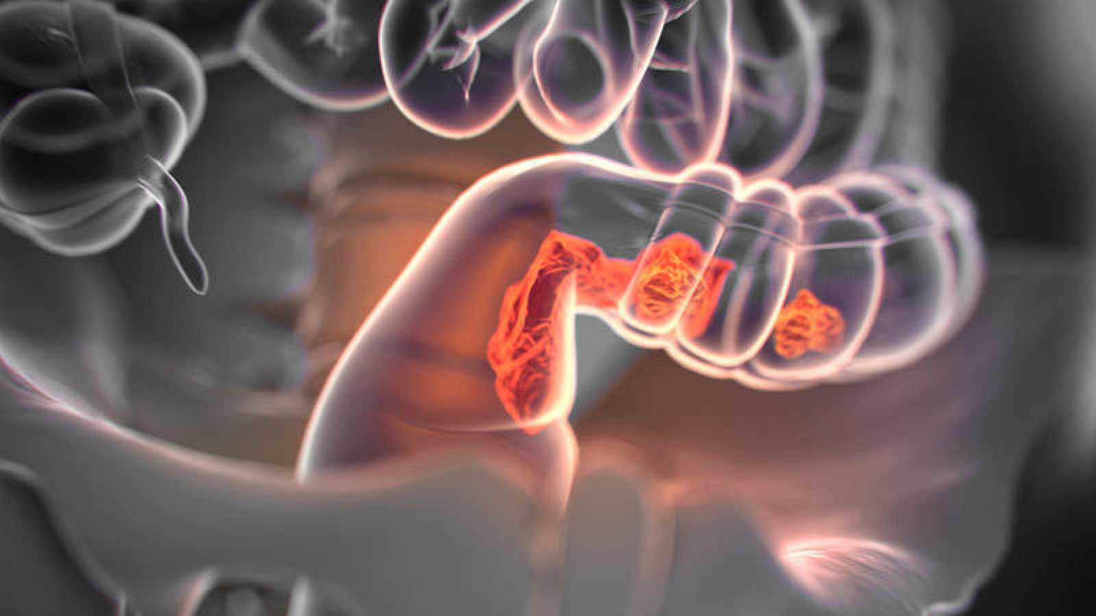 sintomas de cancer de colon infantil
