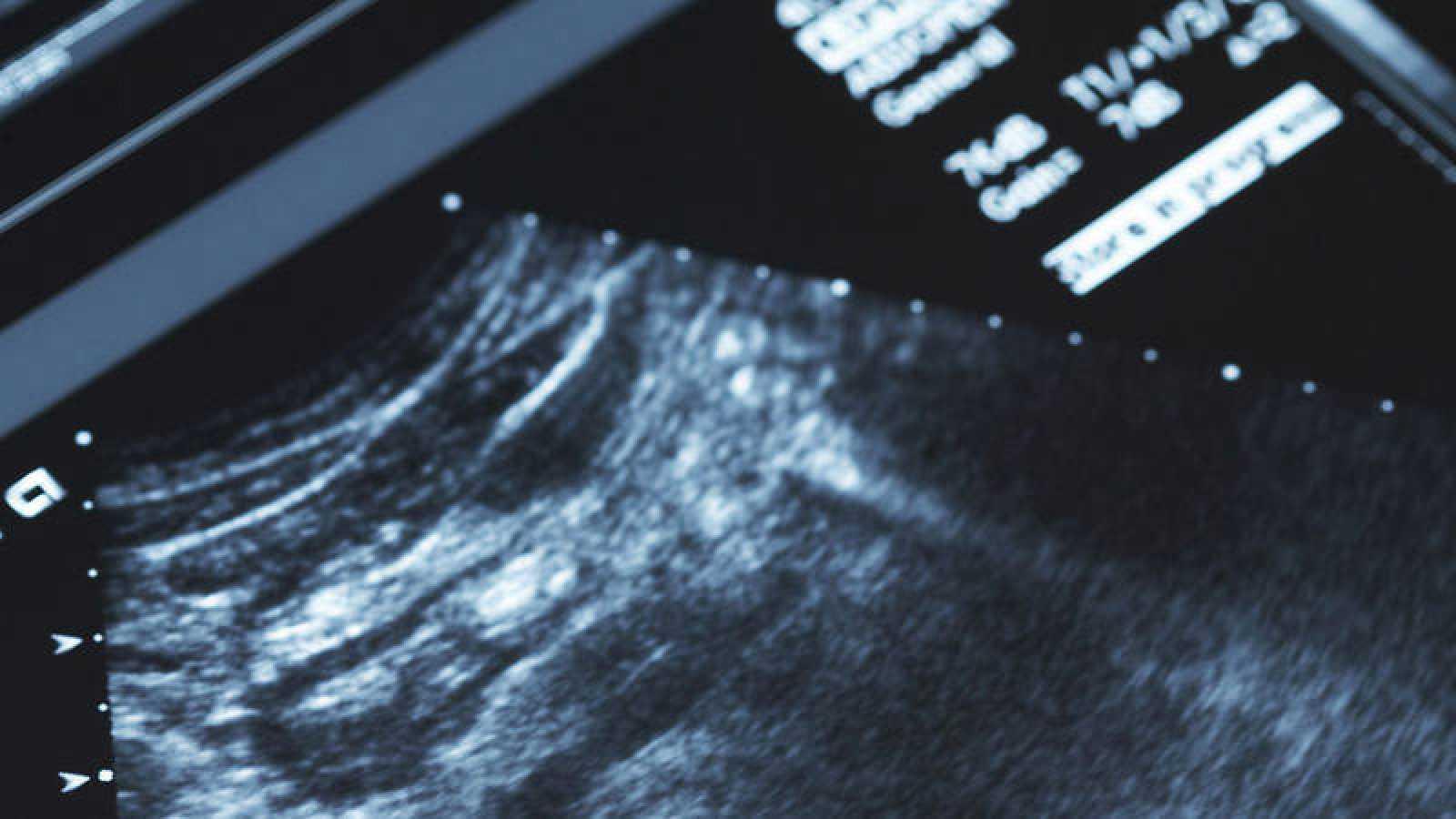 Imagen de archivo de una ecografía.