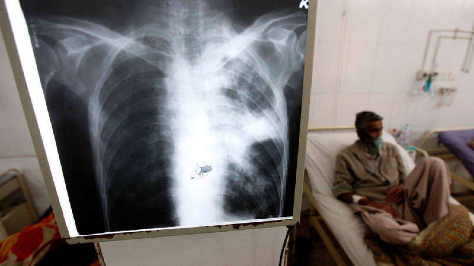 Un paciente enfermo de tuberculosis recibe tratamiento médico en un hospital de Peshawar, Pakistán.