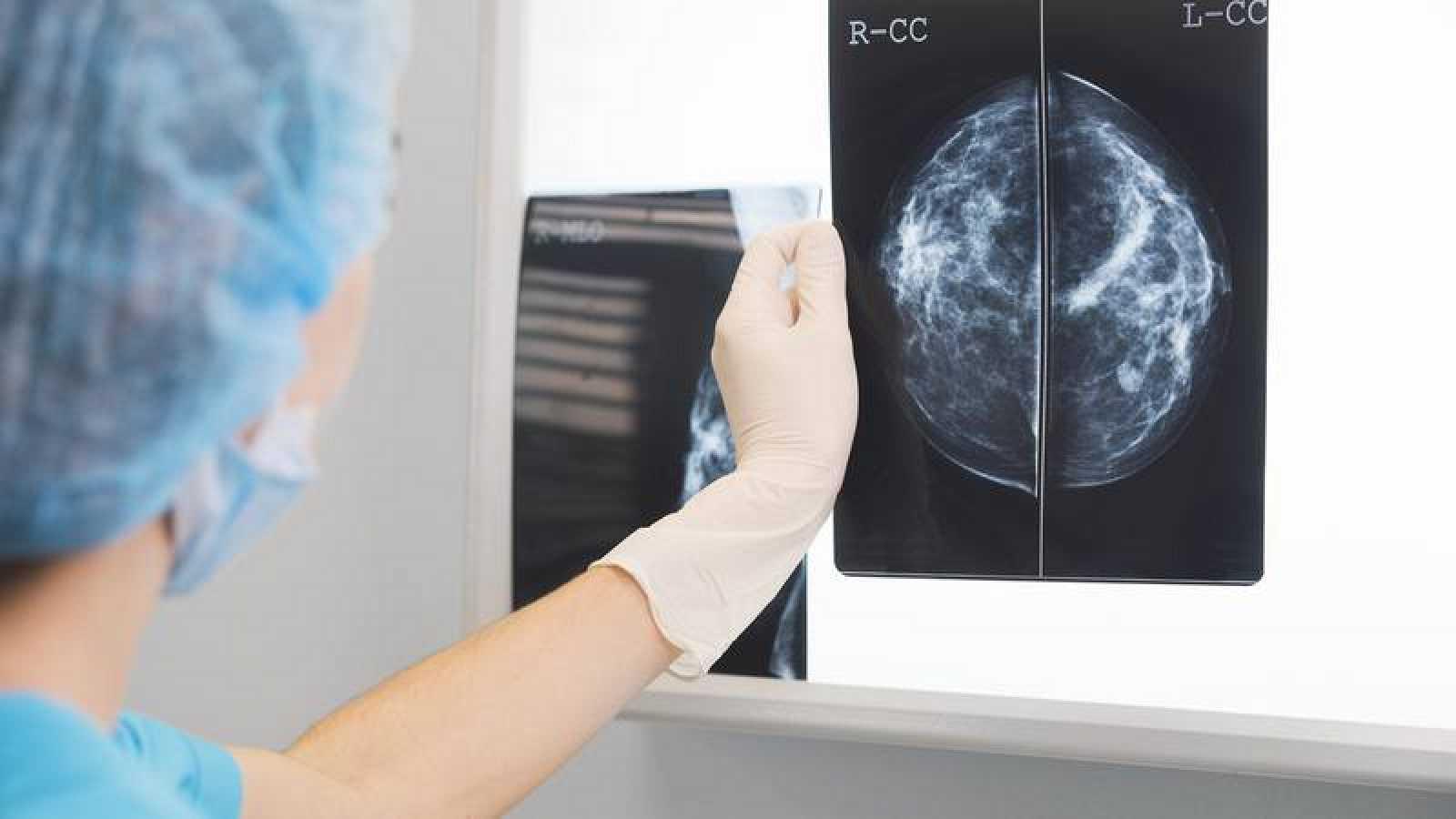 Una doctora inspecciona una mamografía