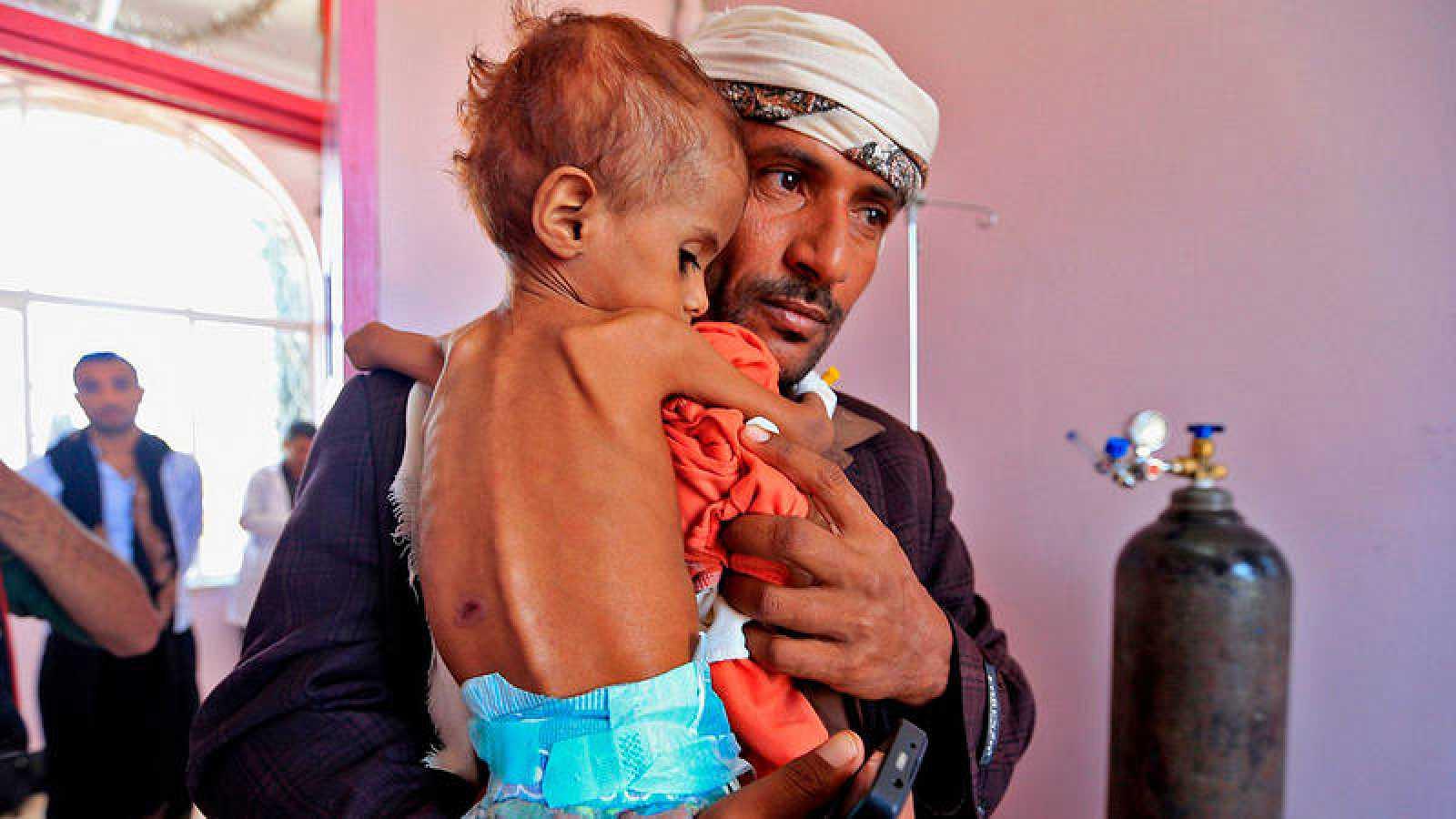 Imagen de archivo: un hombre lleva a su hijo malnutrido en brazos en un hospital de Saná, Yemen Foto: Mohammed HUWAIS / AFP