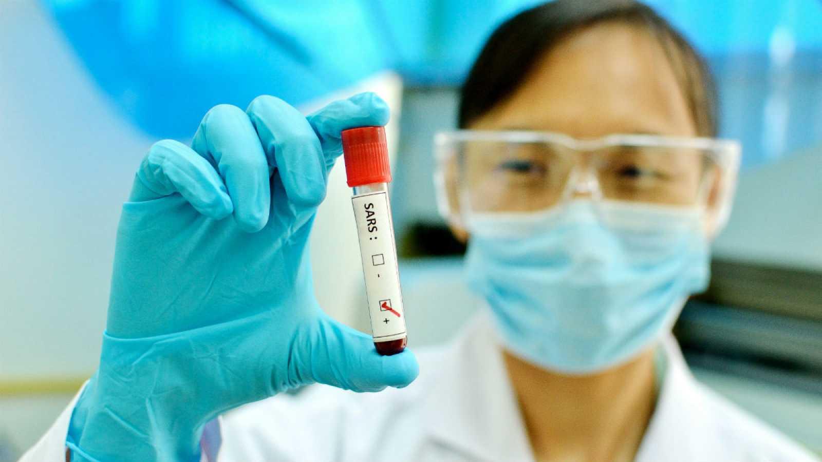 """Una mujer sostiene uuna muestra en la que se puede leer una etiqueta con """"SARS"""": síndrome agudo respiratorio grave."""