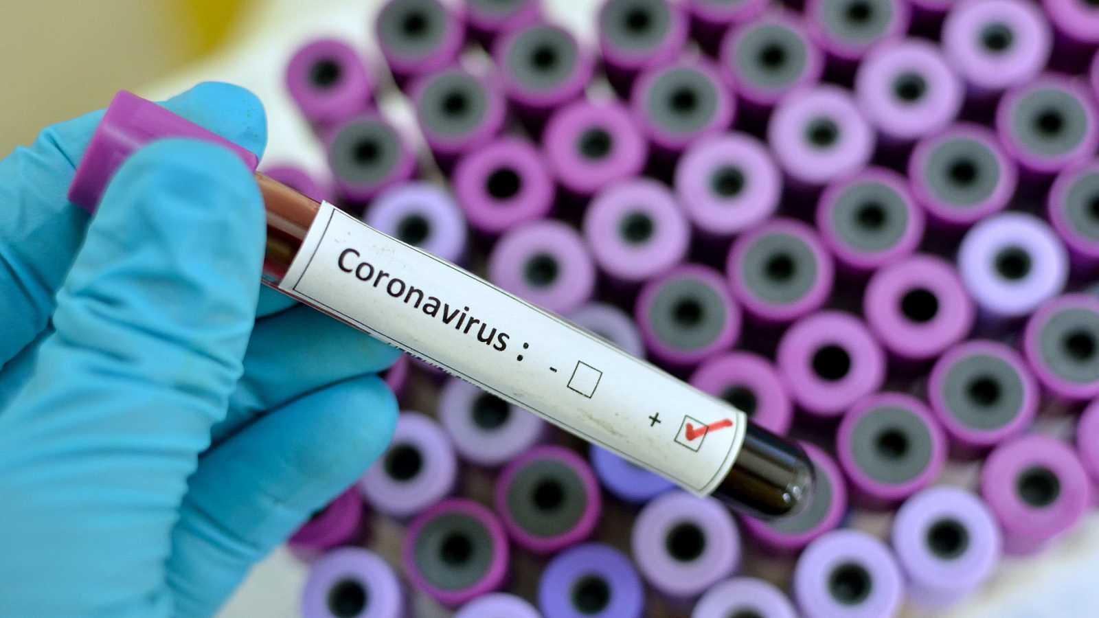 Comercio electrónico y coronavirus en la actualidad