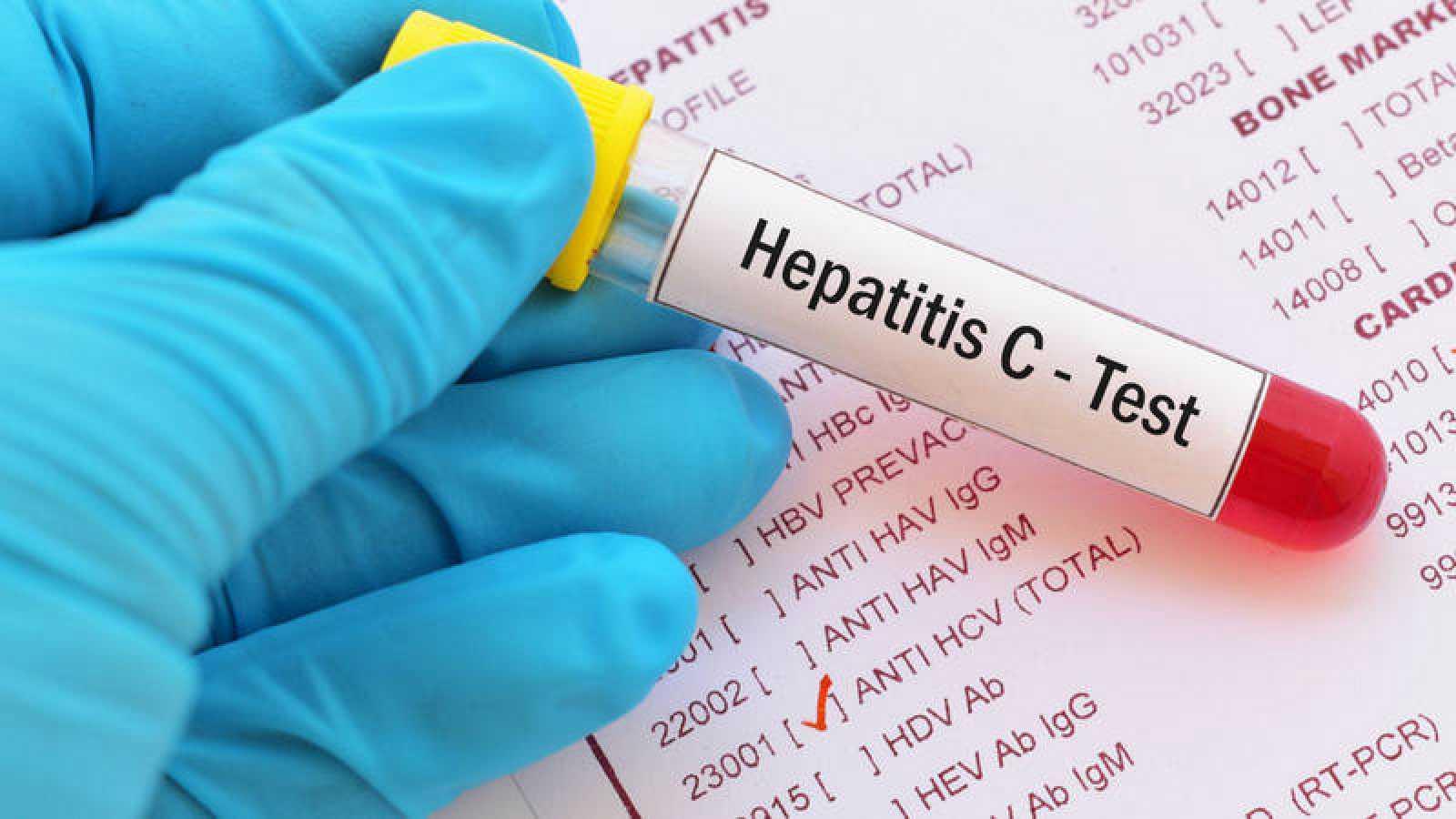 España podría eliminar la hepatitis C seis años antes de lo fijado por la OMS