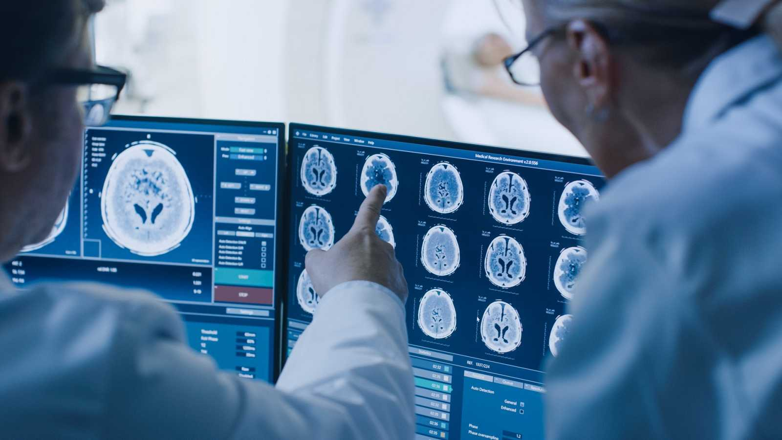 Un equipo de investigadores halla una terapia que mejoraría la supervivencia de pacientes con tumor cerebral