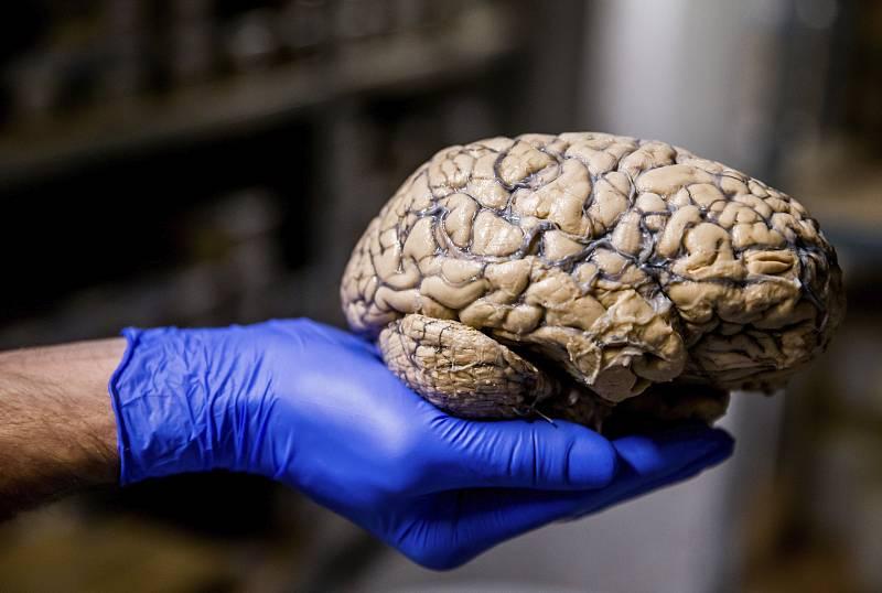 Científicos españoles descubren nuevas terapias para combatir los tumores cerebrales más agresivos