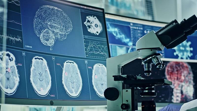 El estudio del cerebro desde el laboratorio, en una imagen de archivo.