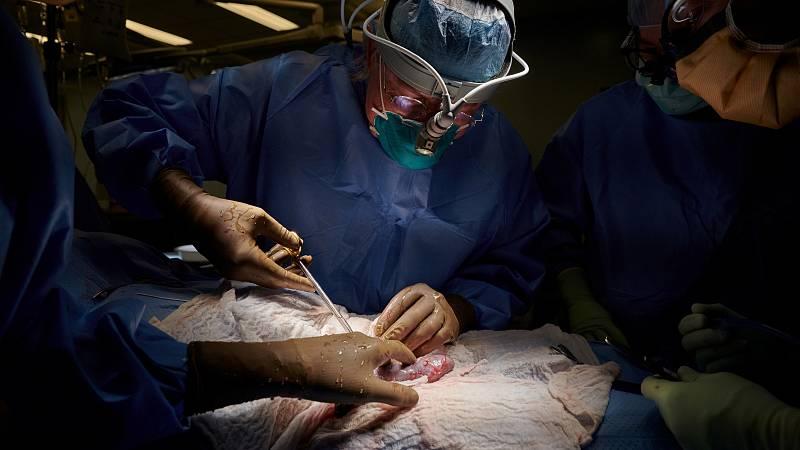 La operación quirúrgica se ha llevado a cabo en el centro NYU Langone Health, de Nueva York.