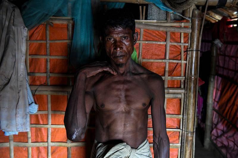 Un refugiado rohinyá posa en su tienda de campaña