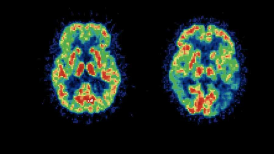 Escáner de un cerebro