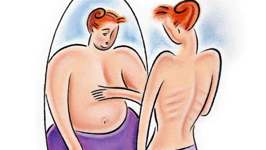 Una mujer con un trastorno alimentario se mira en un espejo y no percibe su imagen real