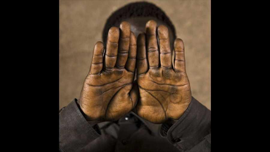 Paul, 17 años. Uganda. Cuando regresó a su casa, después de haber estado 10 años preso por una de las guerrilla de su país, a penas podía mover las manos por las torturas.