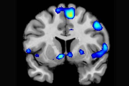 Diversas áreas del cerebro, activas durante la experiencia religiosa de los participantes.