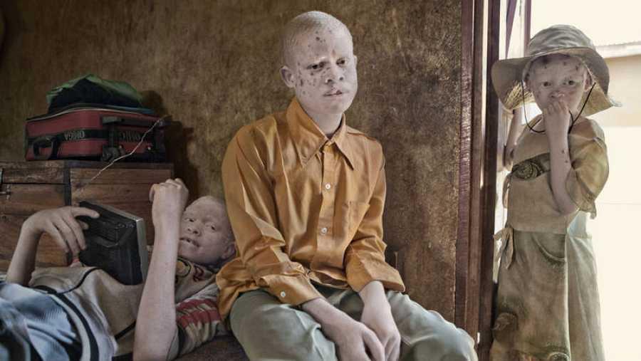 Una de las imágenes de Ana Palacios sobre el albinismo
