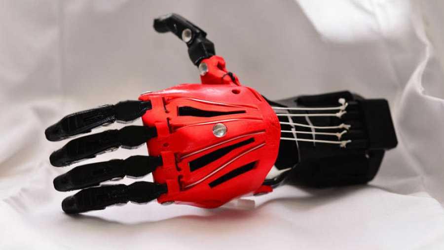 Recientes prótesis con impresión 3D