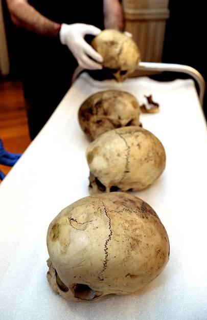 Los huesos de los aborígenes de Gran Canaria empiezan a contar a la ciencia forense una historia muy alejada del romanticismo con que muchas veces se ha mirado a los tiempos previos a la Conquista.