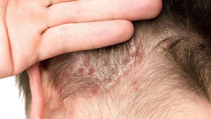 La aparición de lesiones con escamas es una característica de la psoriasis.
