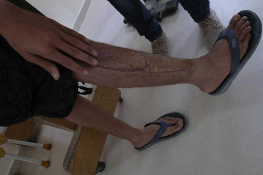 Algunos de los heridos sufrirán secuelas de por vida