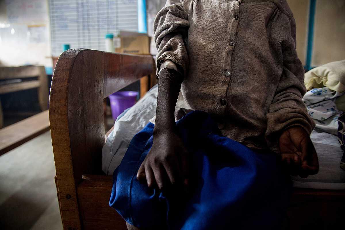 Daniel nos enseña su brazo donde luce un algodón con esparadrapo, en el lugar donde le han inyectado.