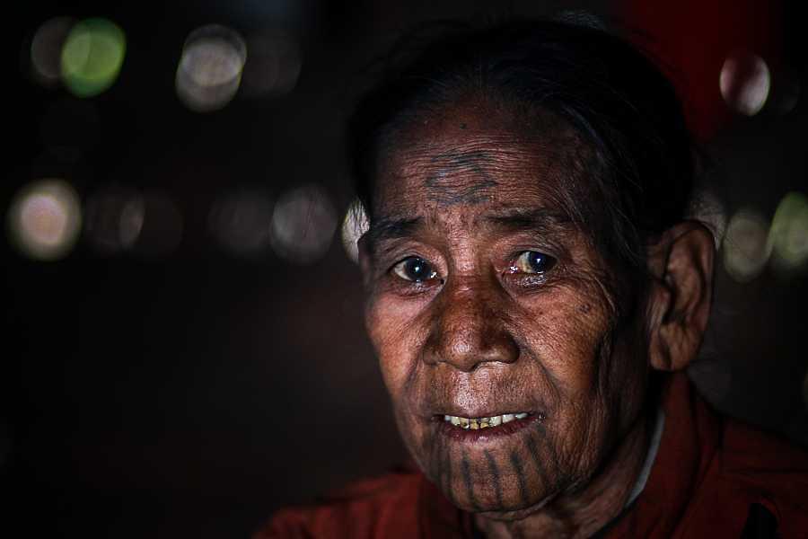 Kamor vive en la aldea de Wu Hta y está siendo tratado por MSF por asma actualmente