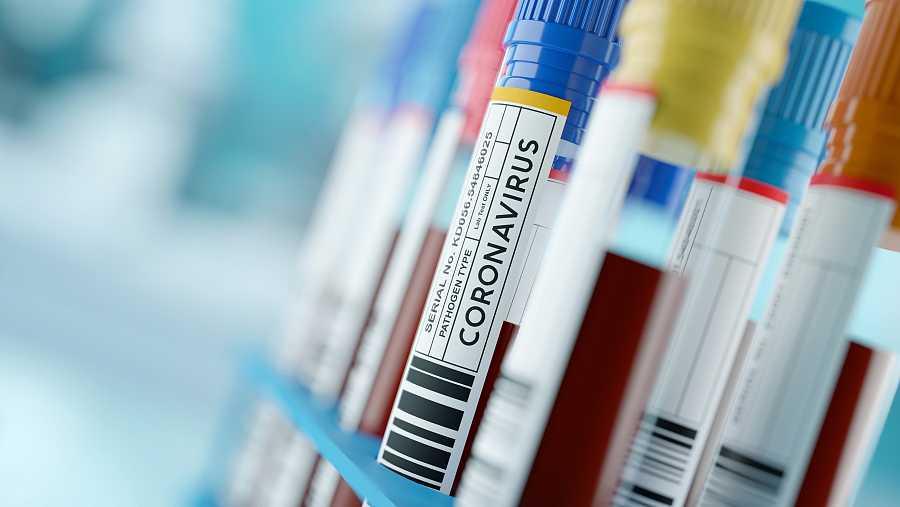 Genetistas buscan marcadores que podrían ayudar a predecir la respuesta de una persona frente al virus.