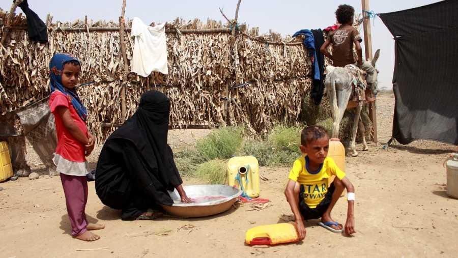Un niño sufre desnutrición severa en Yemen, en el distrito de Hajjah, en una fotografía tomada el 17 de julio.