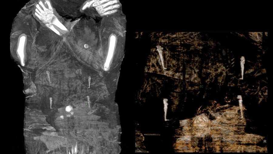 Una radiografía del vientre de la momia en la que se percibe un feto humano