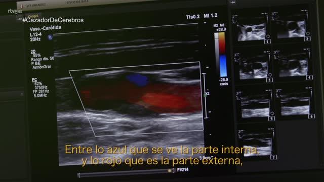 El cazador de cerebros - Curarse en salud - avance
