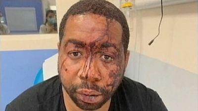 Investigan a cuatro policías en Francia tras difundirse la agresión a un hombre negro sin mascarilla