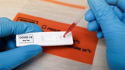 ¿Por qué se puede pasar la COVID-19 sin desarrollar anticuerpos?