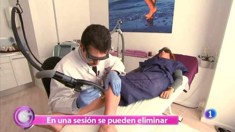 Más Gente - Tratamiento contra las varices sin cirugía
