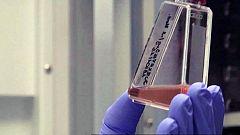 Continúa la investigación en prevención del SIDA en el Instituto de Salud Carlos III
