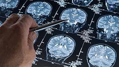 Se estudiará la enfermedad de Alzheimer en la ingravidez del espacio