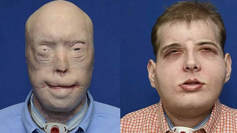 Realizan el trasplante de cara más completo y complejo a un bombero